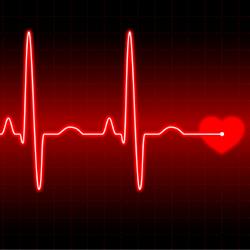 defibrillator-waveform